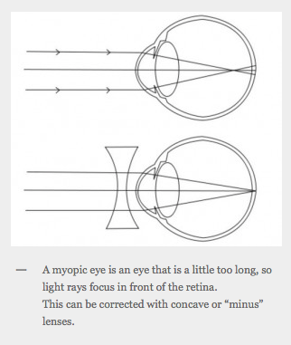 Myopia (Short Sightedness)