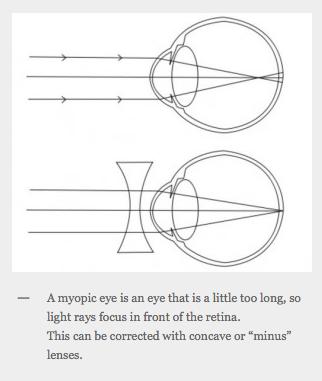 Myopia (Short Sightedness)